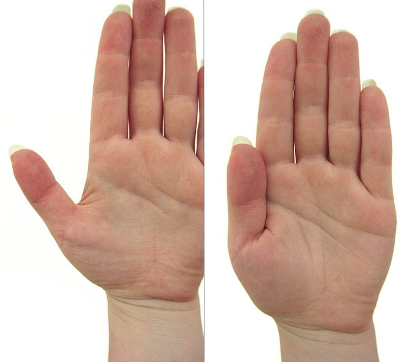 Hand palm showing base of thumb, contrasted with thumb held into side of hand